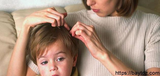 كيف تعرف وجود القمل في الشعر