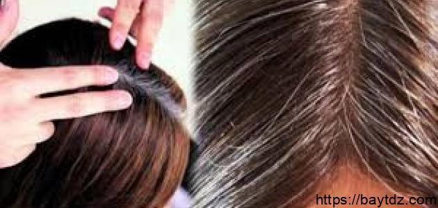كيف يمكن التخلص من الشعر الأبيض نهائياً
