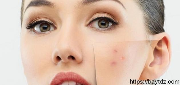 كيفية التخلص من حب الوجه