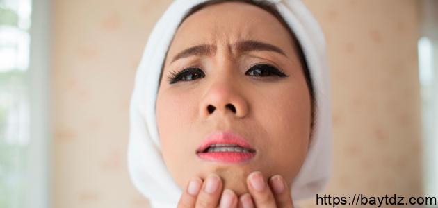 كيفية التخلص من سواد حول الفم
