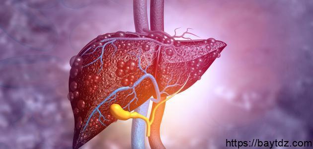 كيفية التخلص من شحوم الكبد