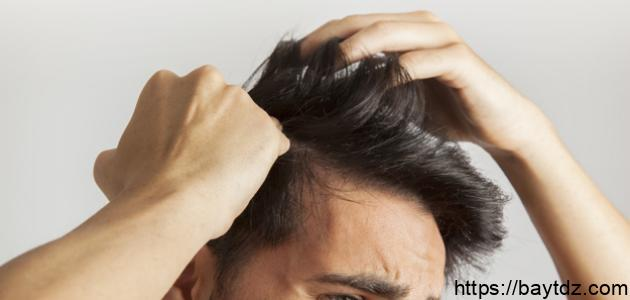 كيفية التخلص من قشرة الشعر للرجال