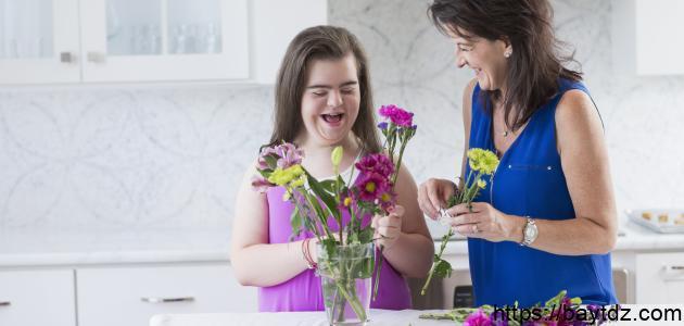 كيفية التعامل مع طفل متلازمة داون