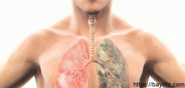 كيفية تشخيص سرطان الرئة
