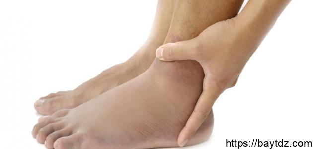 كيفية علاج تورم القدمين