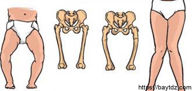 كيفية علاج لين العظام عند الأطفال