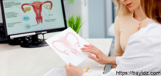كيفية معرفة هبوط الرحم