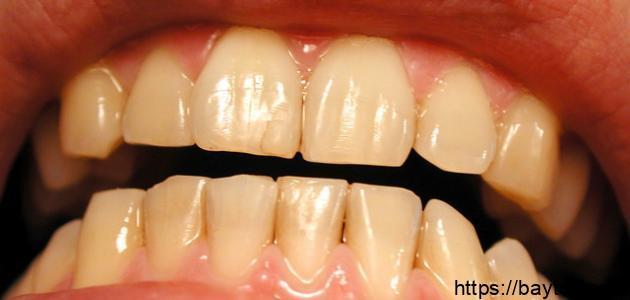 ما أسباب اصفرار الأسنان