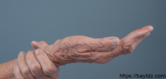 ما أسباب التنميل في اليدين