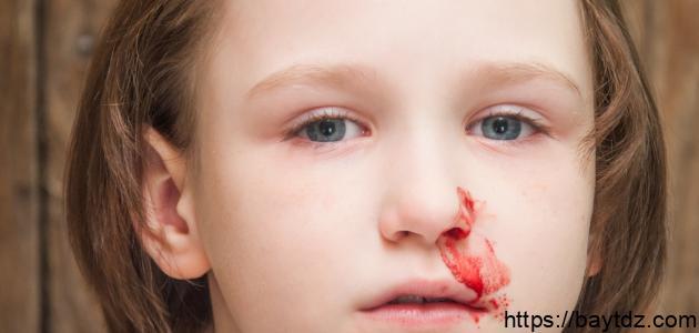 ما أسباب الرعاف عند الاطفال