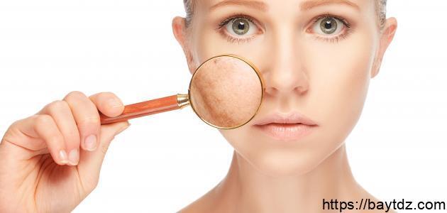 ما سبب تصبغات الجلد