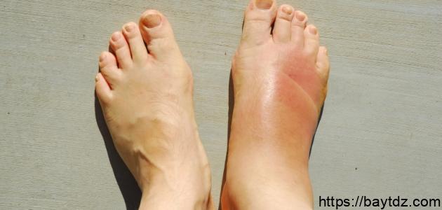 ما سبب تورم القدمين