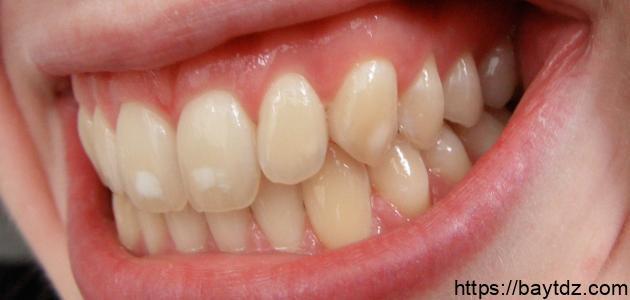 ما سبب ظهور بقع بيضاء على الأسنان