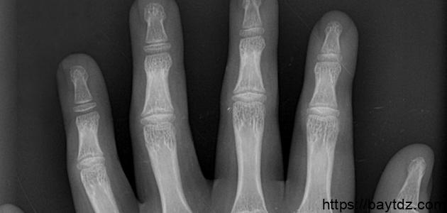 ما عدد فقرات أصابع اليد الواحدة