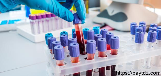 ما هو تحليل الدم aslo