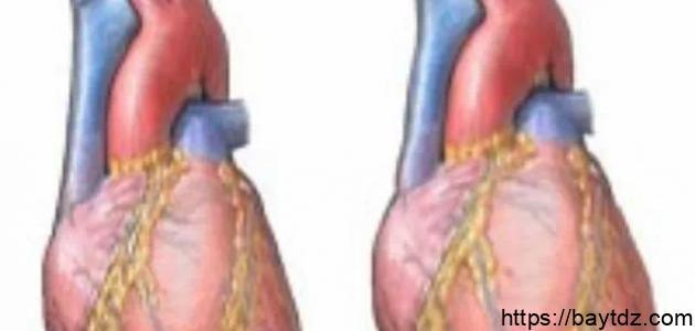 ما هو سبب تضخم القلب