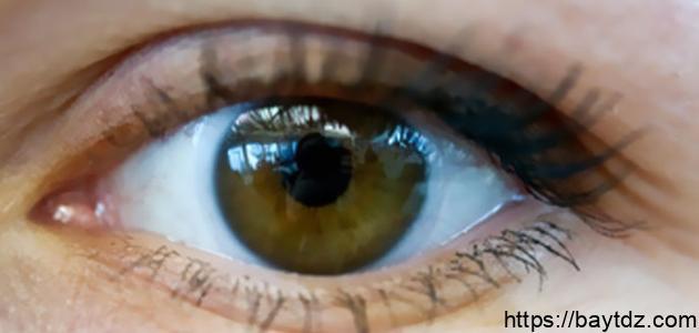ما هو سبب رعشة العين