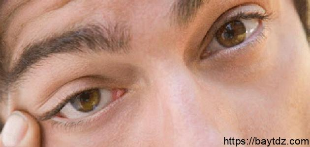 ما هو سبب رفة العين