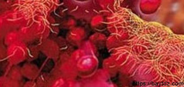 ما هو علاج نقص الصفائح الدموية