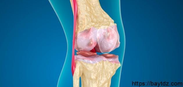 ما هو غضروف الركبة