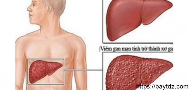 ما هي أسباب تشمع الكبد