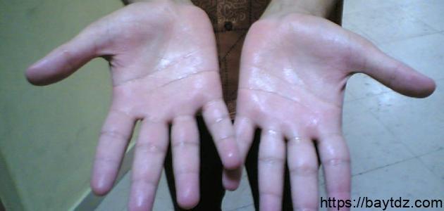 ما هي أسباب تعرق اليدين