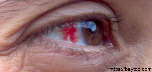 ما هي أعراض ارتفاع ضغط العين