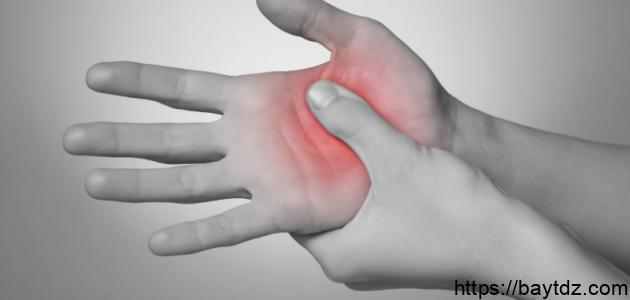 ما هي أعراض الروماتويد
