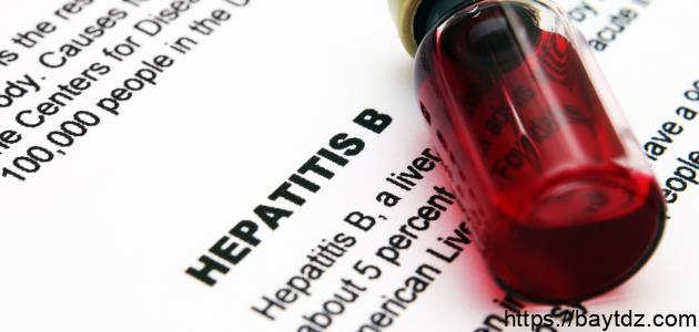 ما هي أعراض الوباء الكبدي