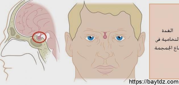 ما هي أعراض ورم الغدة النخامية