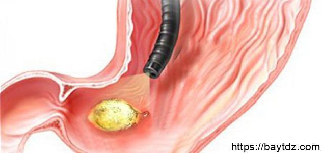 ما هي جرثومة المعدة وأعراضها