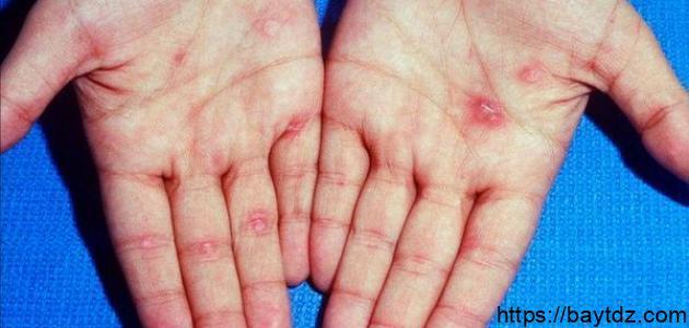 مراحل مرض الزهري