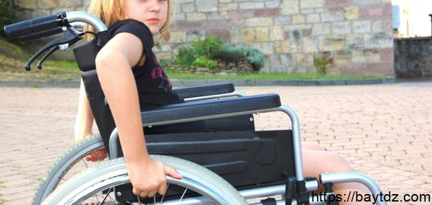 مرض شلل الأطفال