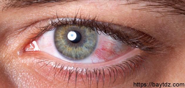 مرض ضغط العين – فيديو