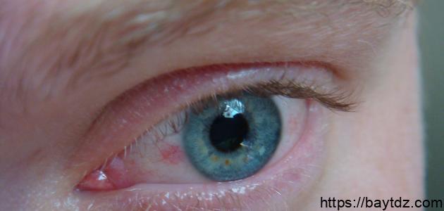 هل ضغط العين يسبب العمى