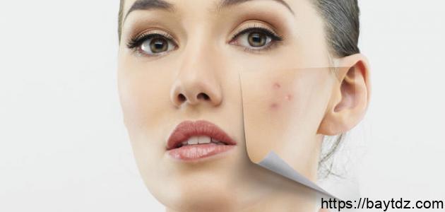 هل نقص فيتامين د يسبب حبوباً في الوجه
