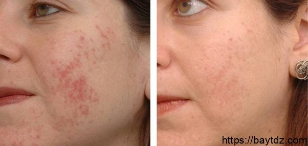وصفات لإزالة آثار الحبوب من الوجه نهائياً