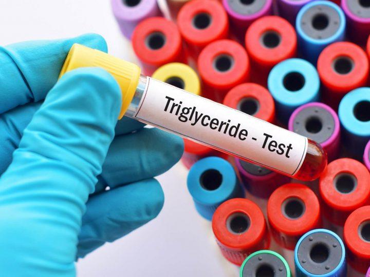 """تفاصيل عن تحليل دهون الدم الثلاثية """" Triglycerides """""""