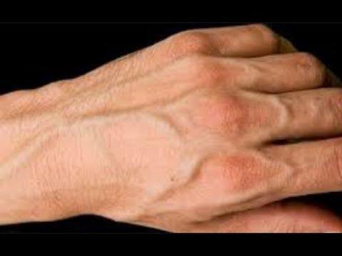 لماذا عروق اليد ظاهره