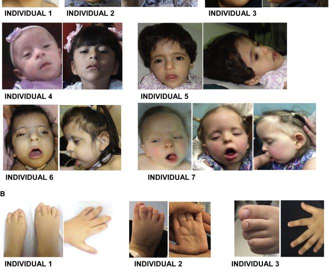 ما الجين الذي يسبب تشوهات خلقية عند الأطفال