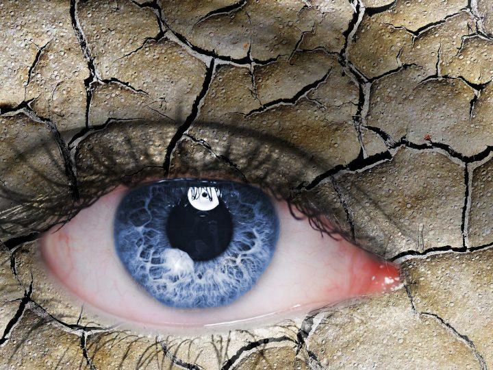 طرق طبيعية لمعالجة جفاف العين في المنزل