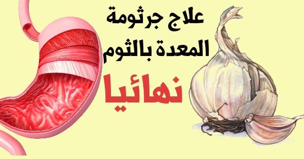 علاج جرثومة المعدة بالثوم